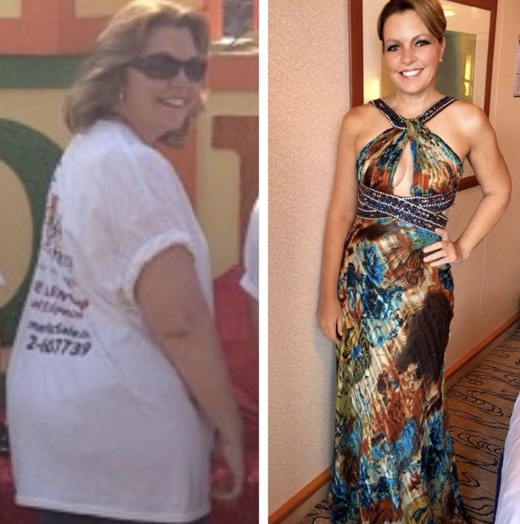 Lori Ballen before and after keto transformation