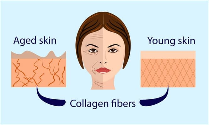 Drawing of a woman with young and older skin and collagen fibers