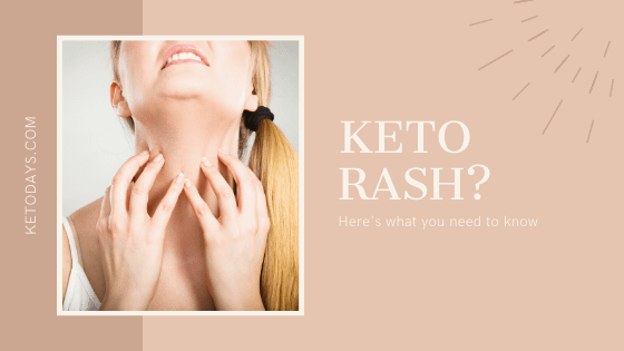 Most people think the keto rash exists because of the itchiness on their bodies. Some of the symptoms that make people think keto rash exists include redness and itchiness around the stomach, neck, and back.